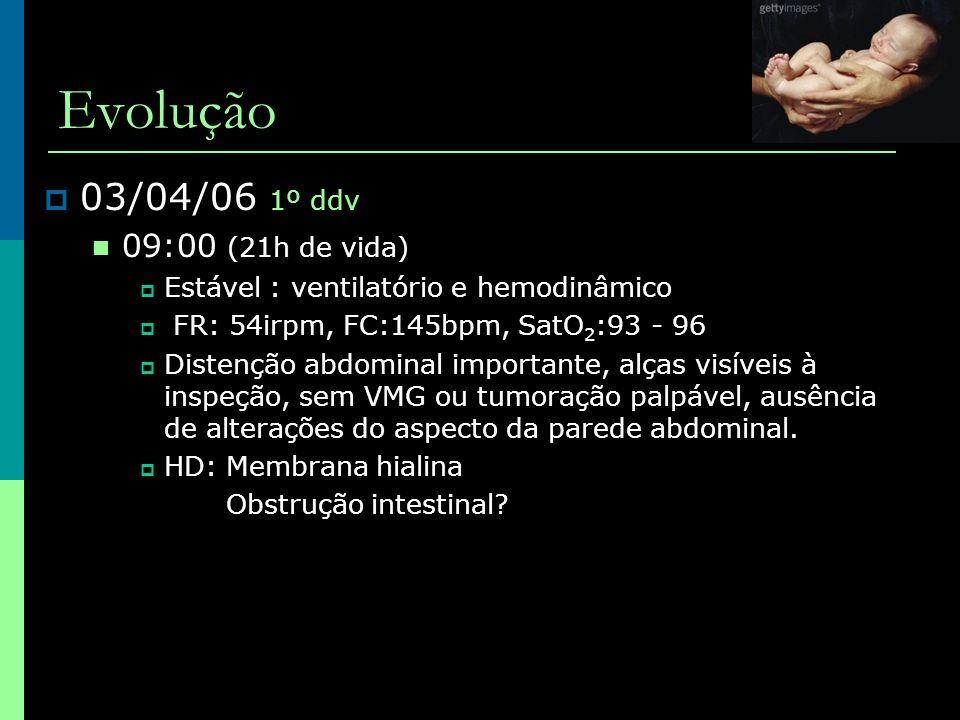Evolução  05/04/06 3º ddv, ampi+genta – D2  Raio X:  tórax: transparência pulmonar preservada  Abdome: alças dilatadas, contraste em reto, sigmóide e cólon descendente (clister opaco há 1 dia)  Muito hipoativo  gasometria pH: 7,49 pCO 2 : 28,8 pO 2 : 43,0 HCO 3 : 24,6 BE: -0,6 SatO 2 : 91,9%
