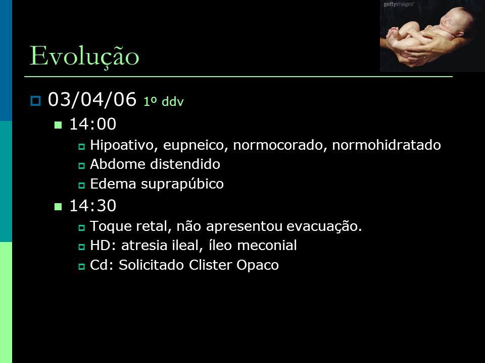 Evolução  07/04/06 5º ddv (1º DPO) ampi+genta - D4, Metronidazol - D1  Laparotomia (início 23:45 – 06/04/06)  Grande quantidade e gás na cavidade  Ausência de conteúdo intestinal livre  Alças de íleo e cólon contendo mecônio espesso firmemente aderido à mucosa intestinal  Não evidenciada abertura em estômago ou intestino.