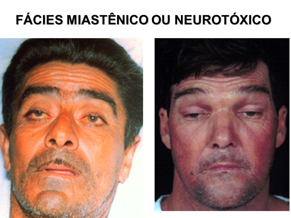 FÁCIES MIASTÊNICO OU NEUROTÓXICO