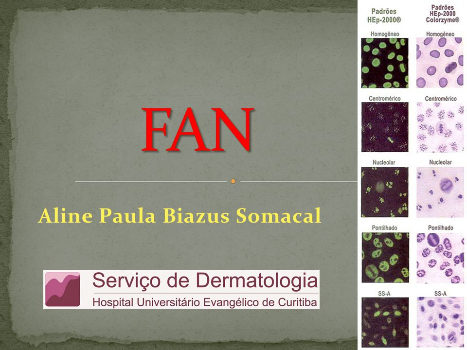  FAN (fator antinuclear) = AAN (anticorpos antinucleares) = ANA = anticorpo antinuclear = PAAC (pesquisa de anticorpos contra antígenos celulares)  O FAN não é um anticorpo antinuclear específico, e sim um teste para avaliar a presença de um ou mais autoanticorpos.