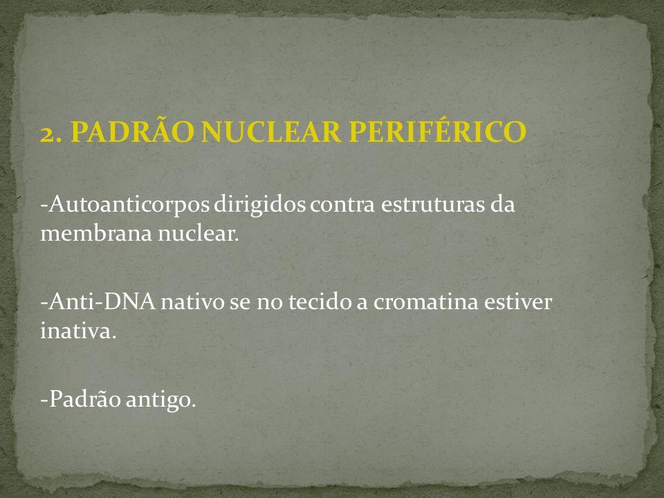 2.PADRÃO NUCLEAR PERIFÉRICO -Autoanticorpos dirigidos contra estruturas da membrana nuclear.