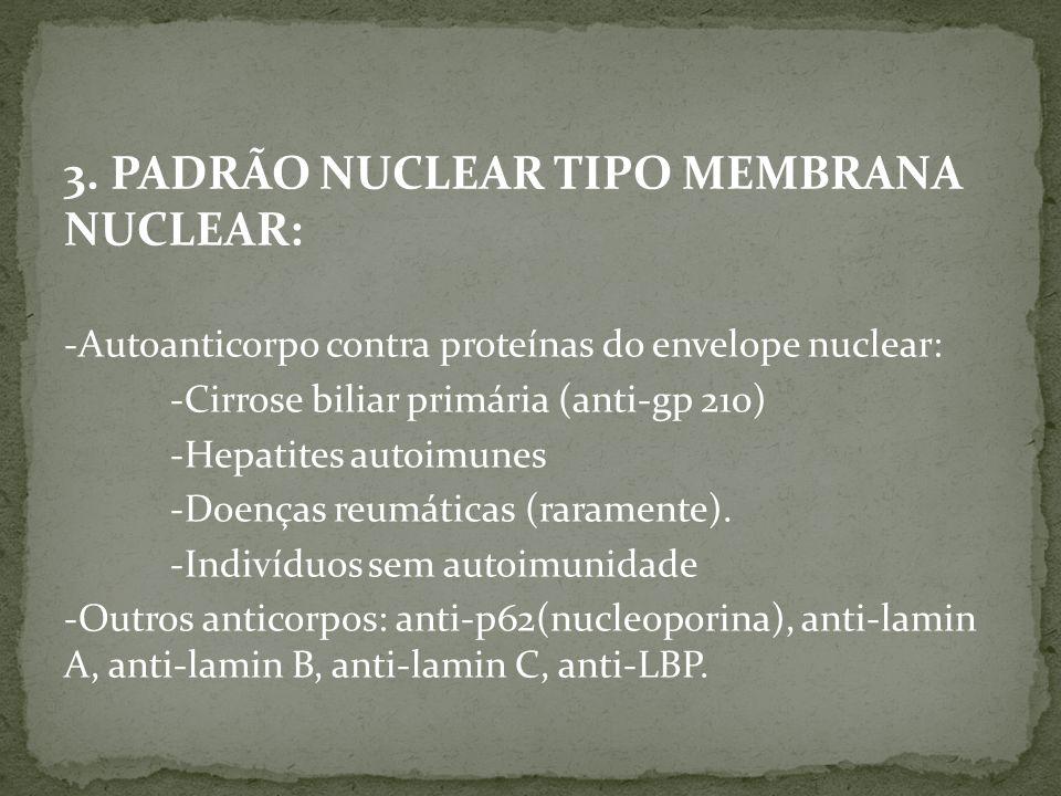 3. PADRÃO NUCLEAR TIPO MEMBRANA NUCLEAR: -Autoanticorpo contra proteínas do envelope nuclear: -Cirrose biliar primária (anti-gp 210) -Hepatites autoim