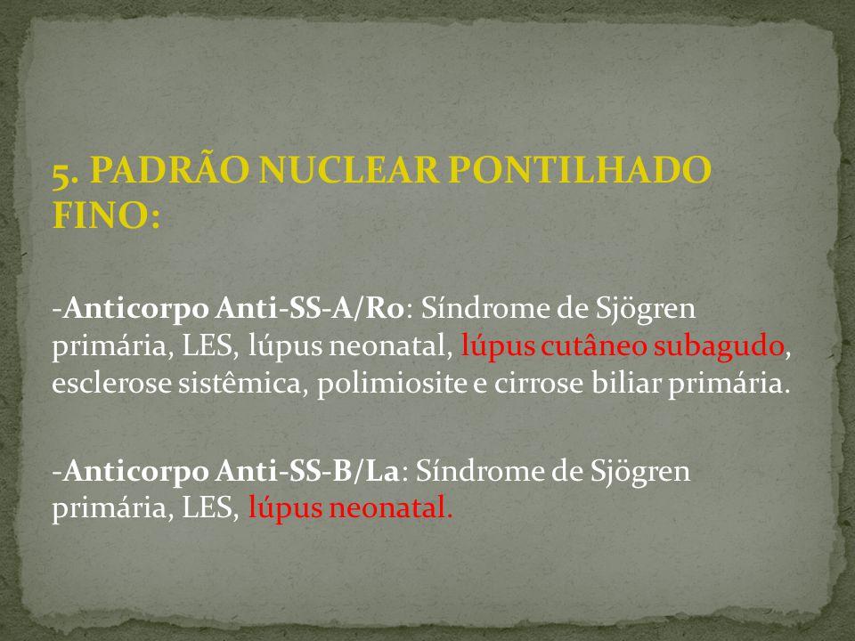 5. PADRÃO NUCLEAR PONTILHADO FINO: -Anticorpo Anti-SS-A/Ro: Síndrome de Sjögren primária, LES, lúpus neonatal, lúpus cutâneo subagudo, esclerose sistê