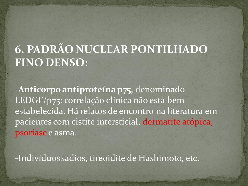 6. PADRÃO NUCLEAR PONTILHADO FINO DENSO: -Anticorpo antiproteína p75, denominado LEDGF/p75: correlação clínica não está bem estabelecida. Há relatos d
