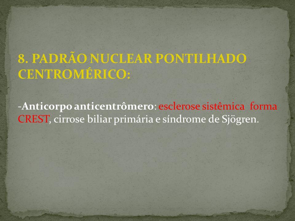 8. PADRÃO NUCLEAR PONTILHADO CENTROMÉRICO: -Anticorpo anticentrômero: esclerose sistêmica forma CREST, cirrose biliar primária e síndrome de Sjögren.