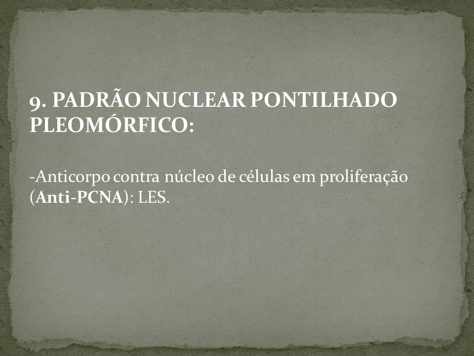 9. PADRÃO NUCLEAR PONTILHADO PLEOMÓRFICO: -Anticorpo contra núcleo de células em proliferação (Anti-PCNA): LES.