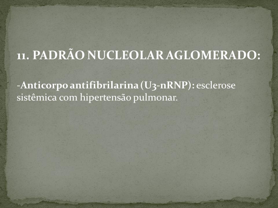 11. PADRÃO NUCLEOLAR AGLOMERADO: -Anticorpo antifibrilarina (U3-nRNP): esclerose sistêmica com hipertensão pulmonar.
