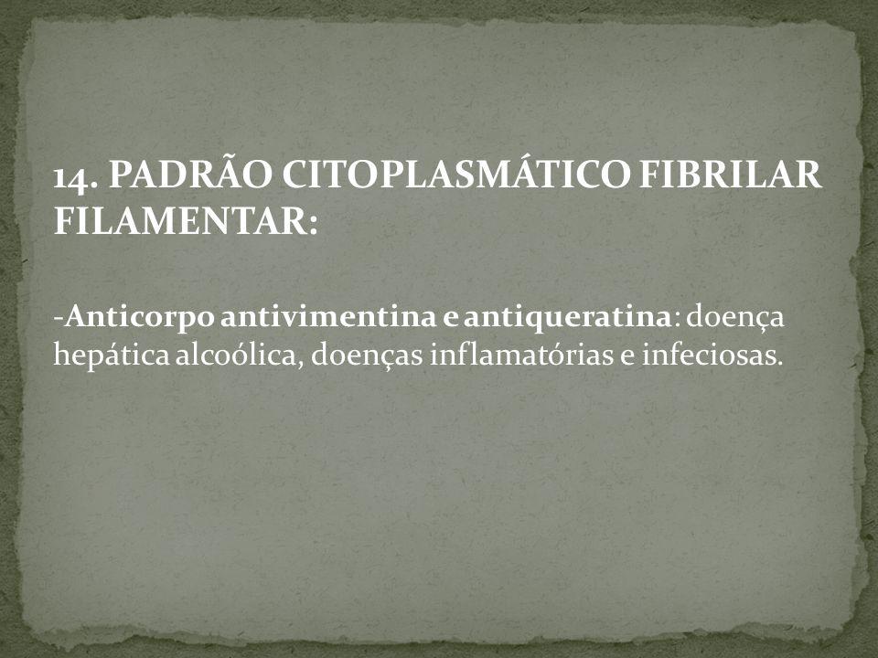 14. PADRÃO CITOPLASMÁTICO FIBRILAR FILAMENTAR: -Anticorpo antivimentina e antiqueratina: doença hepática alcoólica, doenças inflamatórias e infeciosas