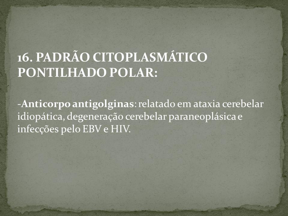 16. PADRÃO CITOPLASMÁTICO PONTILHADO POLAR: -Anticorpo antigolginas: relatado em ataxia cerebelar idiopática, degeneração cerebelar paraneoplásica e i