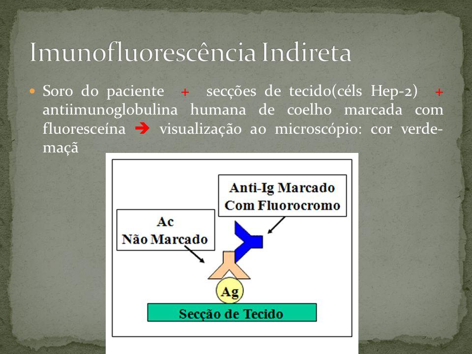  Soro do paciente + secções de tecido(céls Hep-2) + antiimunoglobulina humana de coelho marcada com fluoresceína  visualização ao microscópio: cor verde- maçã