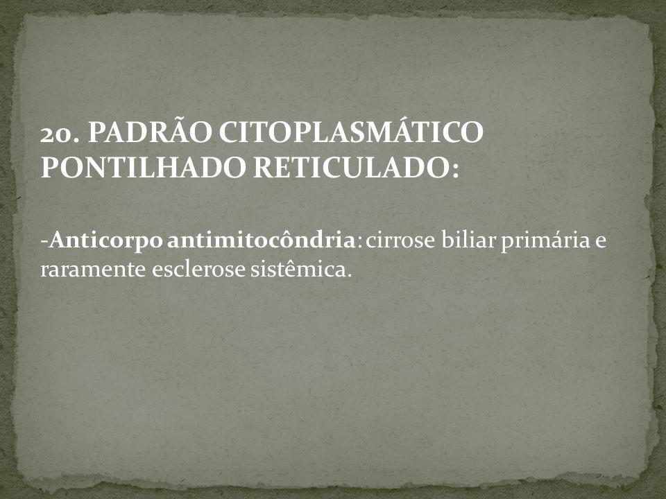 20. PADRÃO CITOPLASMÁTICO PONTILHADO RETICULADO: -Anticorpo antimitocôndria: cirrose biliar primária e raramente esclerose sistêmica.