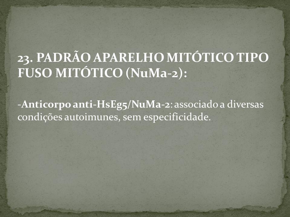 23. PADRÃO APARELHO MITÓTICO TIPO FUSO MITÓTICO (NuMa-2): -Anticorpo anti-HsEg5/NuMa-2: associado a diversas condições autoimunes, sem especificidade.