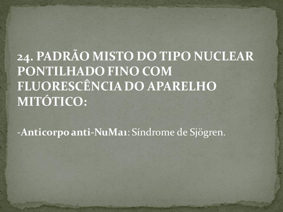 24. PADRÃO MISTO DO TIPO NUCLEAR PONTILHADO FINO COM FLUORESCÊNCIA DO APARELHO MITÓTICO: -Anticorpo anti-NuMa1: Síndrome de Sjögren.