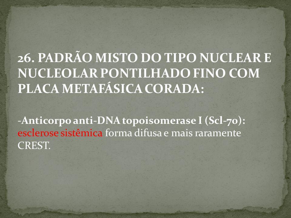 26. PADRÃO MISTO DO TIPO NUCLEAR E NUCLEOLAR PONTILHADO FINO COM PLACA METAFÁSICA CORADA: -Anticorpo anti-DNA topoisomerase I (Scl-70): esclerose sist
