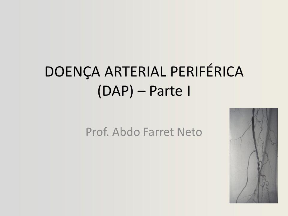 DOENÇA ARTERIAL PERIFÉRICA (DAP) • FISIOPATOLOGIA – Limitação obstrutiva do fluxo sanguíneo > isquemia – Fluxo = P / R – 50% de estenose >> ↑ a resistência ao fluxo em 16X (lei de Poiseuille)