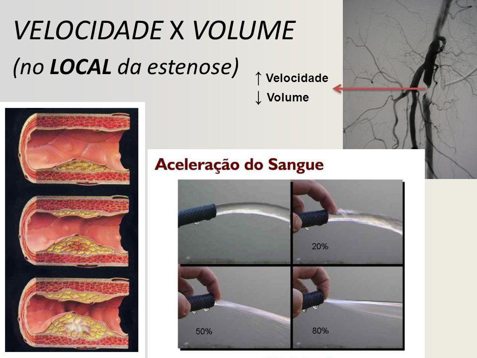 VELOCIDADE X VOLUME (no LOCAL da estenose) ↑ Velocidade ↓ Volume