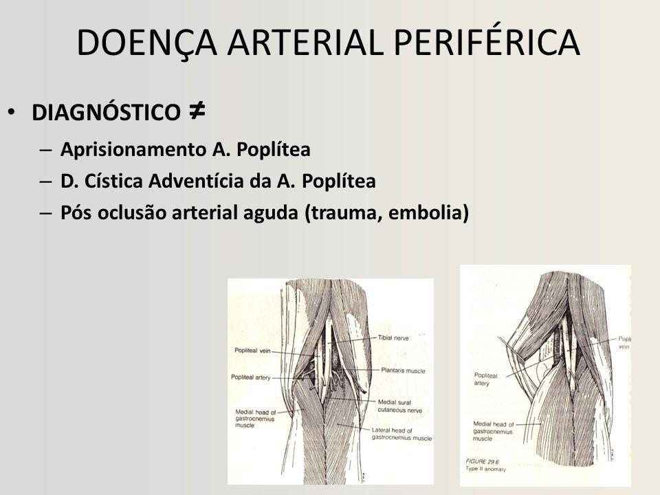 DOENÇA ARTERIAL PERIFÉRICA • DIAGNÓSTICO ≠ – Aprisionamento A.