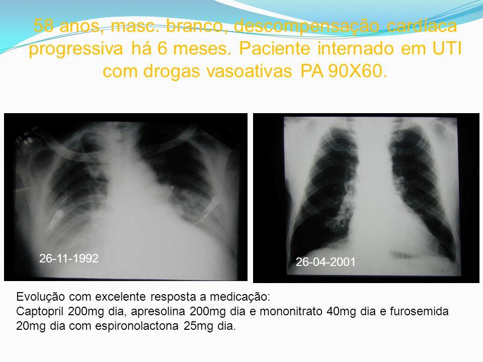 26-11-1992 26-04-2001 58 anos, masc. branco, descompensação cardíaca progressiva há 6 meses. Paciente internado em UTI com drogas vasoativas PA 90X60.