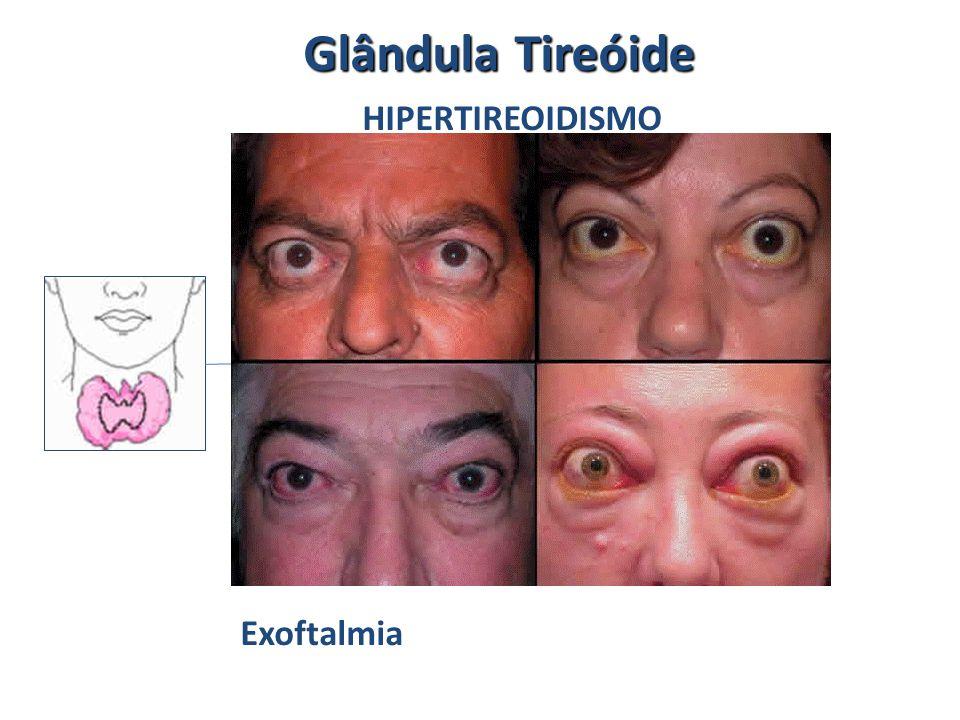 HIPERTIREOIDISMO Exoftalmia