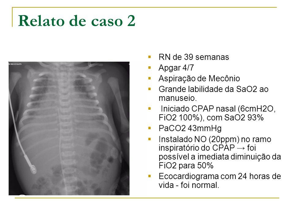 Relato de caso 2  RN de 39 semanas  Apgar 4/7  Aspiração de Mecônio  Grande labilidade da SaO2 ao manuseio.