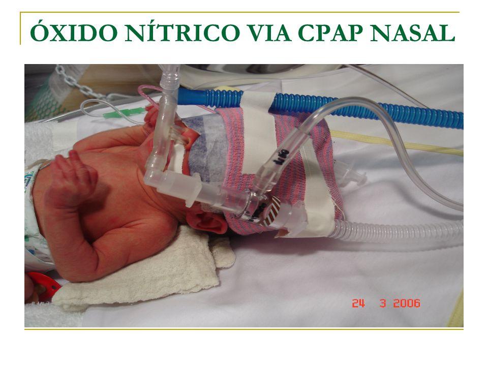 ÓXIDO NÍTRICO VIA CPAP NASAL