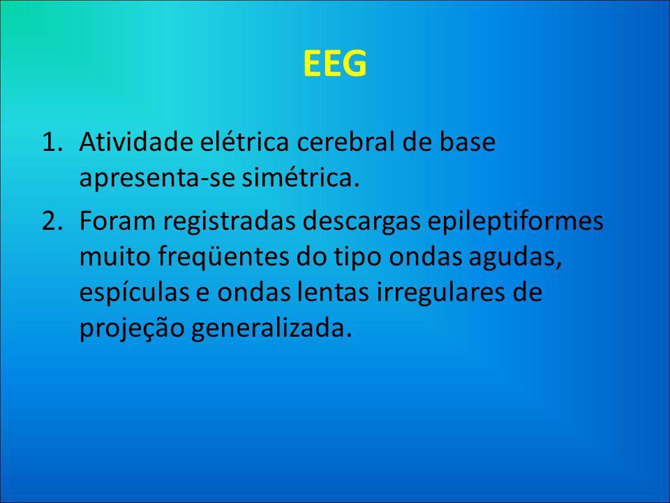 EEG 1.Atividade elétrica cerebral de base apresenta-se simétrica.