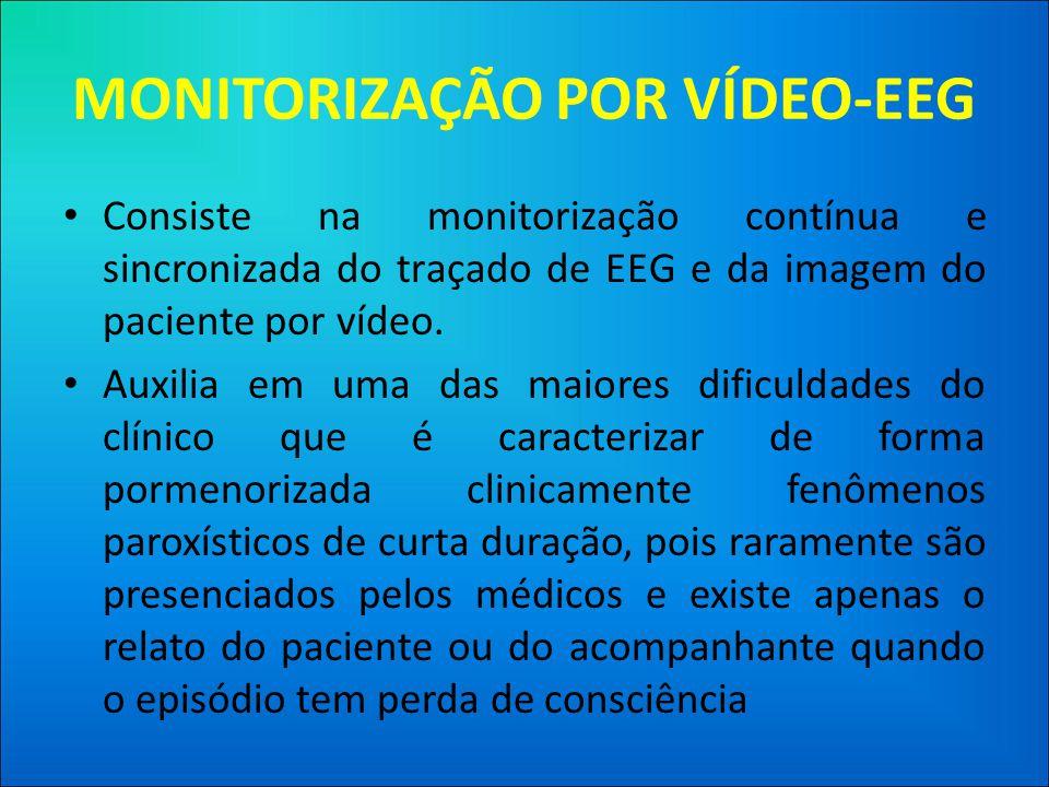 MONITORIZAÇÃO POR VÍDEO-EEG • Consiste na monitorização contínua e sincronizada do traçado de EEG e da imagem do paciente por vídeo.
