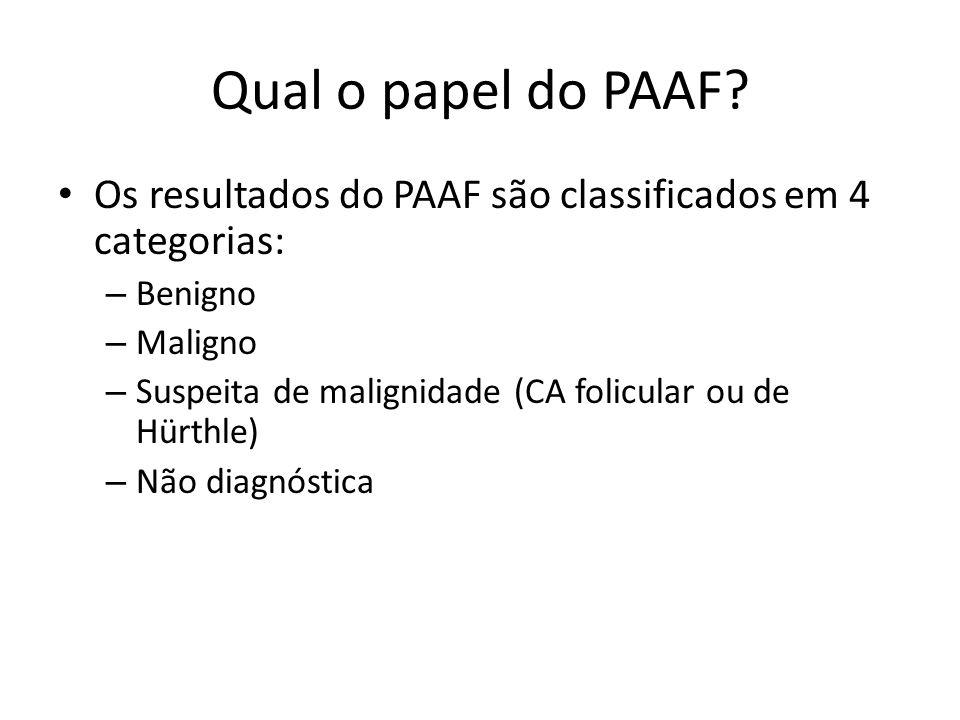 Qual o papel do PAAF? • Os resultados do PAAF são classificados em 4 categorias: – Benigno – Maligno – Suspeita de malignidade (CA folicular ou de Hür