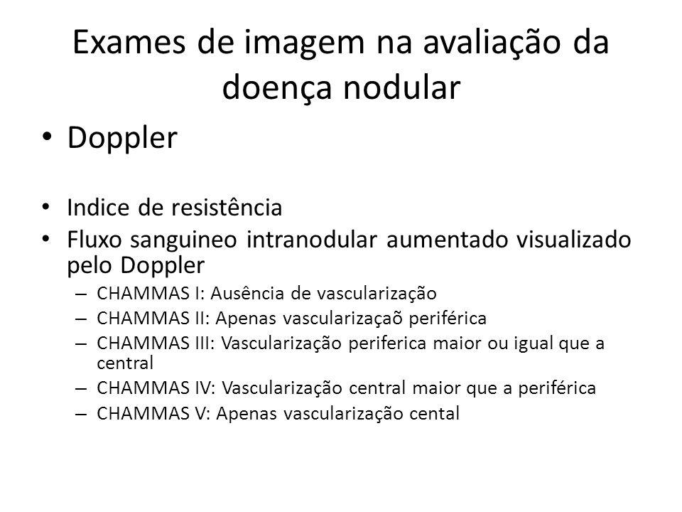 Exames de imagem na avaliação da doença nodular • Doppler • Indice de resistência • Fluxo sanguineo intranodular aumentado visualizado pelo Doppler –