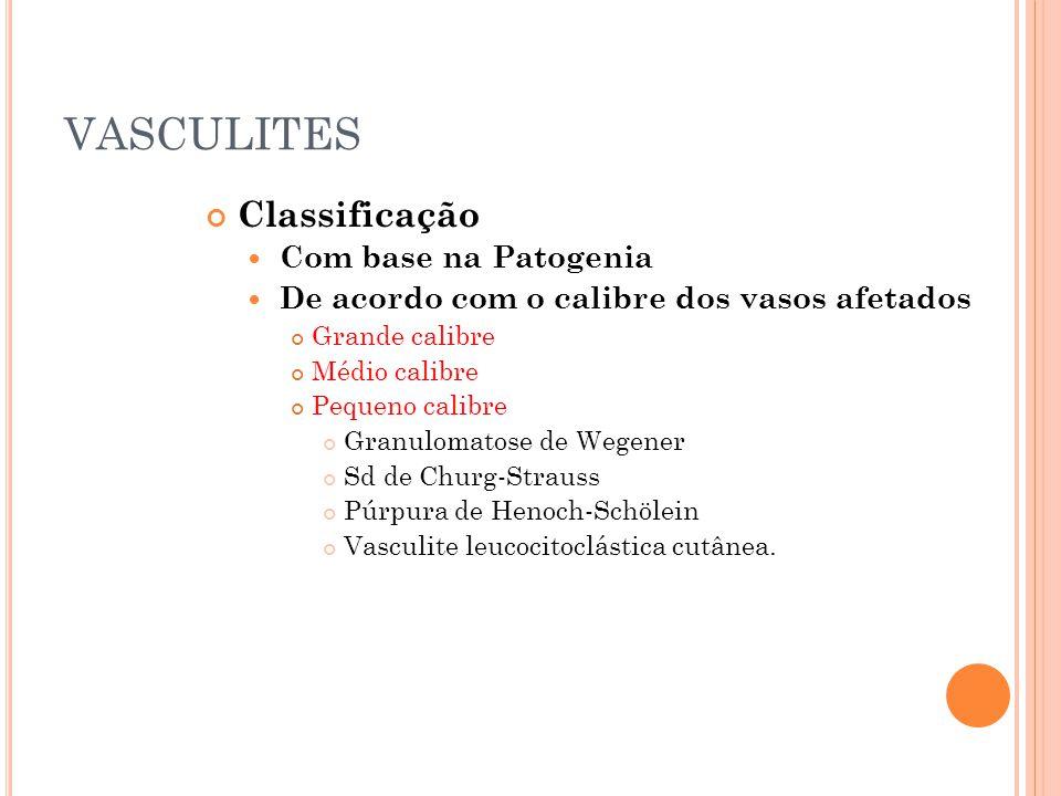 VASCULITES Classificação  Com base na Patogenia  De acordo com o calibre dos vasos afetados Grande calibre Médio calibre Pequeno calibre Granulomato