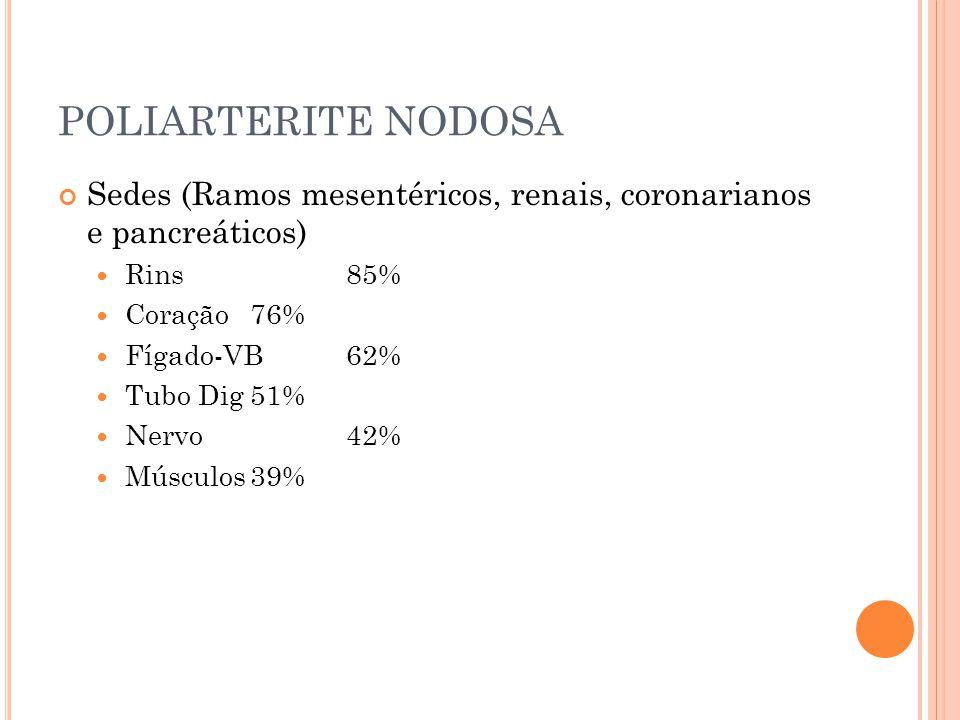 POLIARTERITE NODOSA Sedes (Ramos mesentéricos, renais, coronarianos e pancreáticos)  Rins85%  Coração76%  Fígado-VB62%  Tubo Dig51%  Nervo42%  M