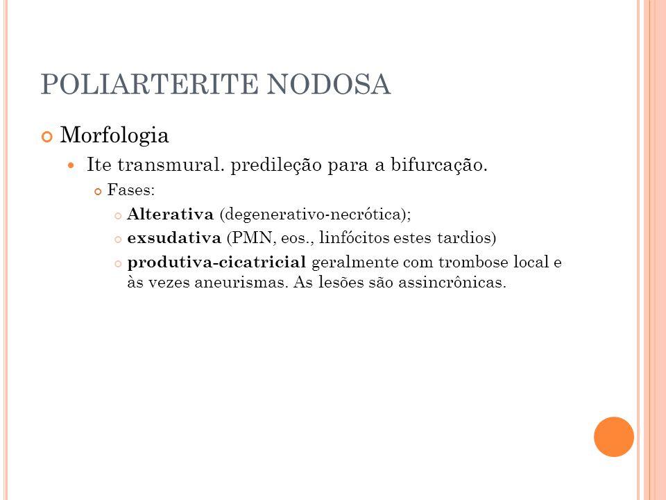POLIARTERITE NODOSA Morfologia  Ite transmural. predileção para a bifurcação. Fases: Alterativa (degenerativo-necrótica); exsudativa (PMN, eos., linf