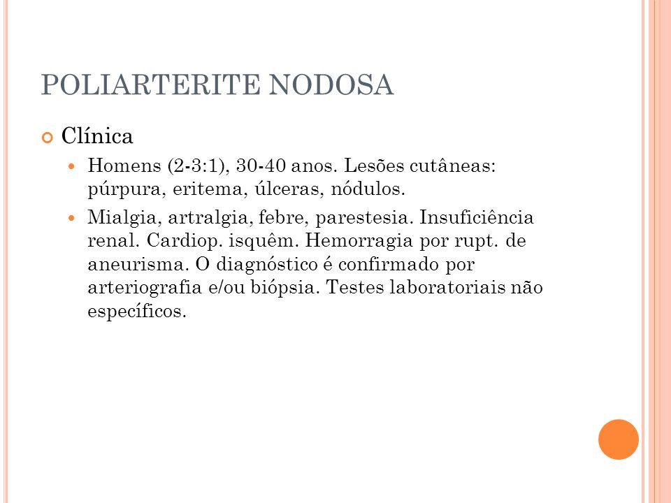 POLIARTERITE NODOSA Clínica  Homens (2-3:1), 30-40 anos. Lesões cutâneas: púrpura, eritema, úlceras, nódulos.  Mialgia, artralgia, febre, parestesia