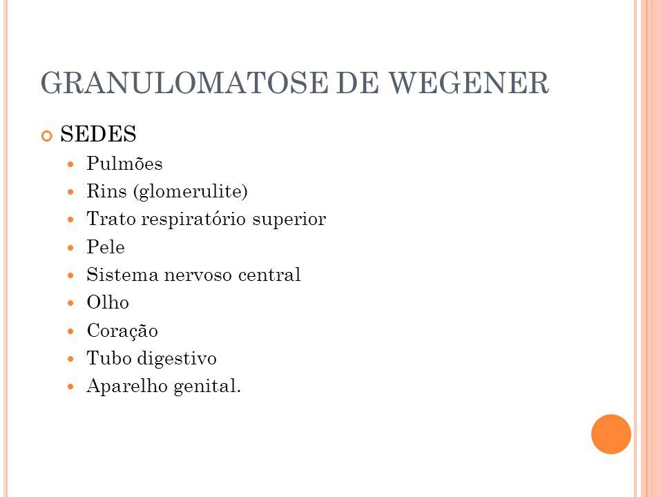 GRANULOMATOSE DE WEGENER SEDES  Pulmões  Rins (glomerulite)  Trato respiratório superior  Pele  Sistema nervoso central  Olho  Coração  Tubo d