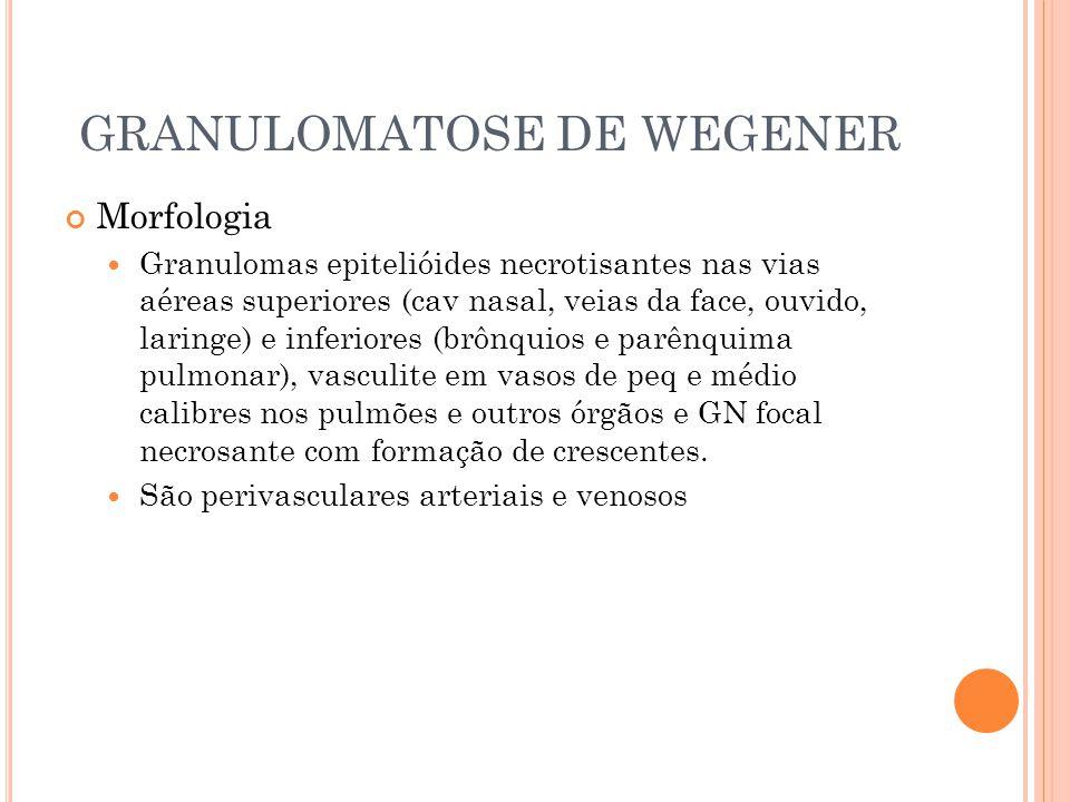 GRANULOMATOSE DE WEGENER Morfologia  Granulomas epitelióides necrotisantes nas vias aéreas superiores (cav nasal, veias da face, ouvido, laringe) e i