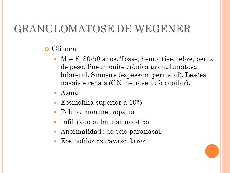 GRANULOMATOSE DE WEGENER Clínica  M = F, 30-50 anos. Tosse, hemoptise, febre, perda de peso. Pneumonite crônica granulomatosa bilateral. Sinusite (es