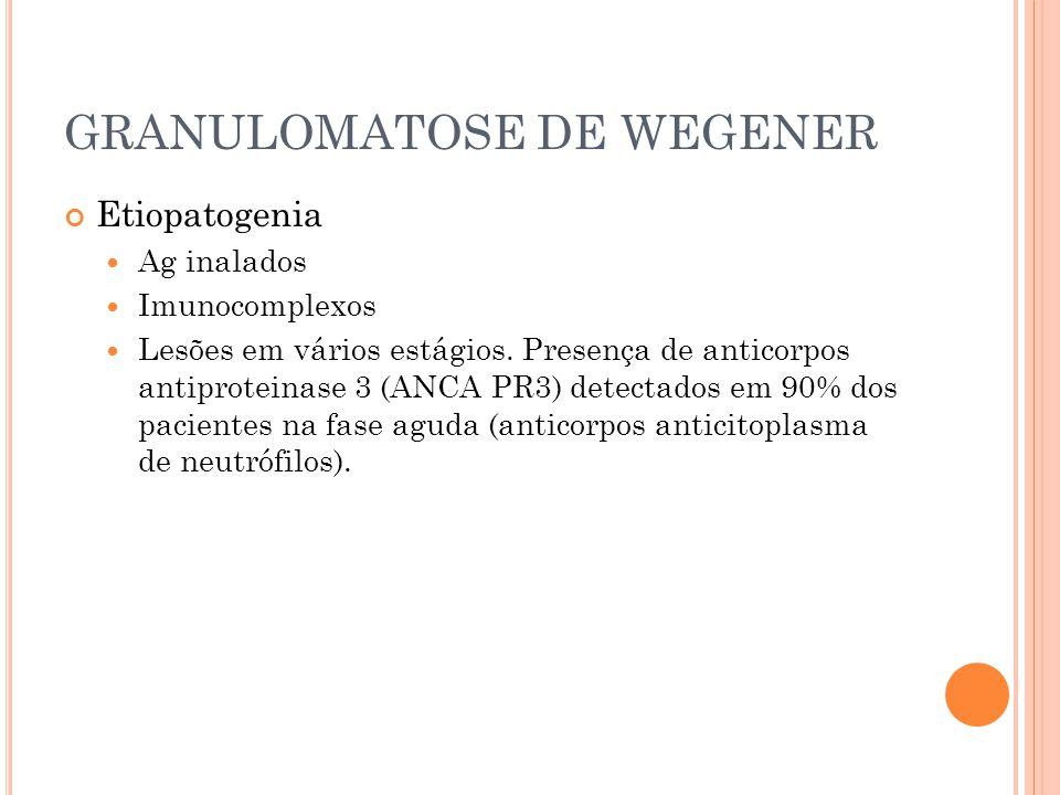 GRANULOMATOSE DE WEGENER Etiopatogenia  Ag inalados  Imunocomplexos  Lesões em vários estágios. Presença de anticorpos antiproteinase 3 (ANCA PR3)
