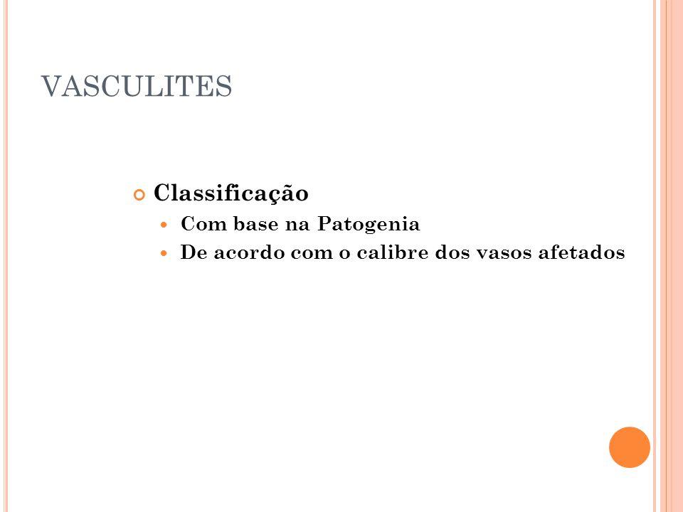 VASCULITES Classificação  Com base na Patogenia  De acordo com o calibre dos vasos afetados