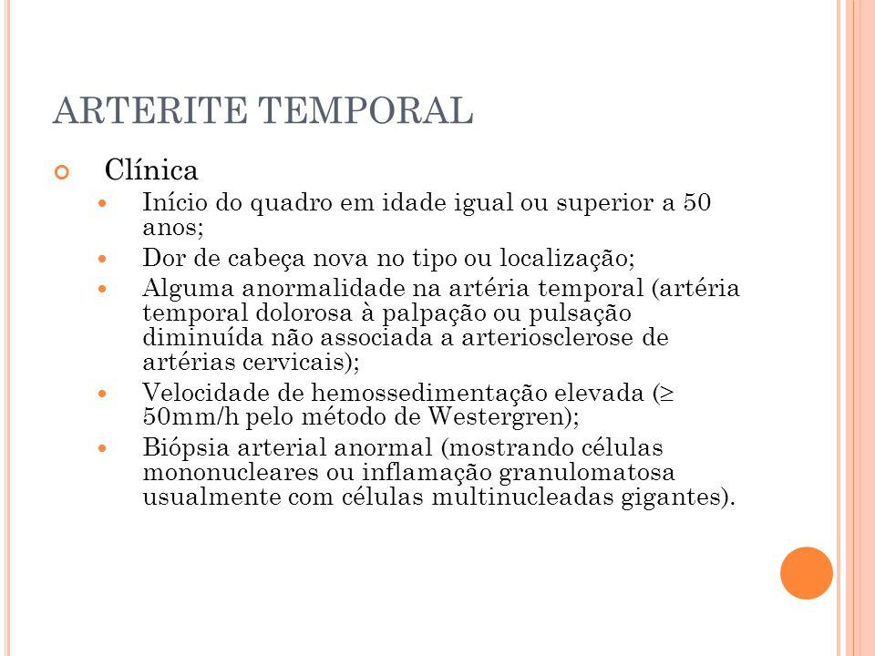 ARTERITE TEMPORAL Clínica  Início do quadro em idade igual ou superior a 50 anos;  Dor de cabeça nova no tipo ou localização;  Alguma anormalidade