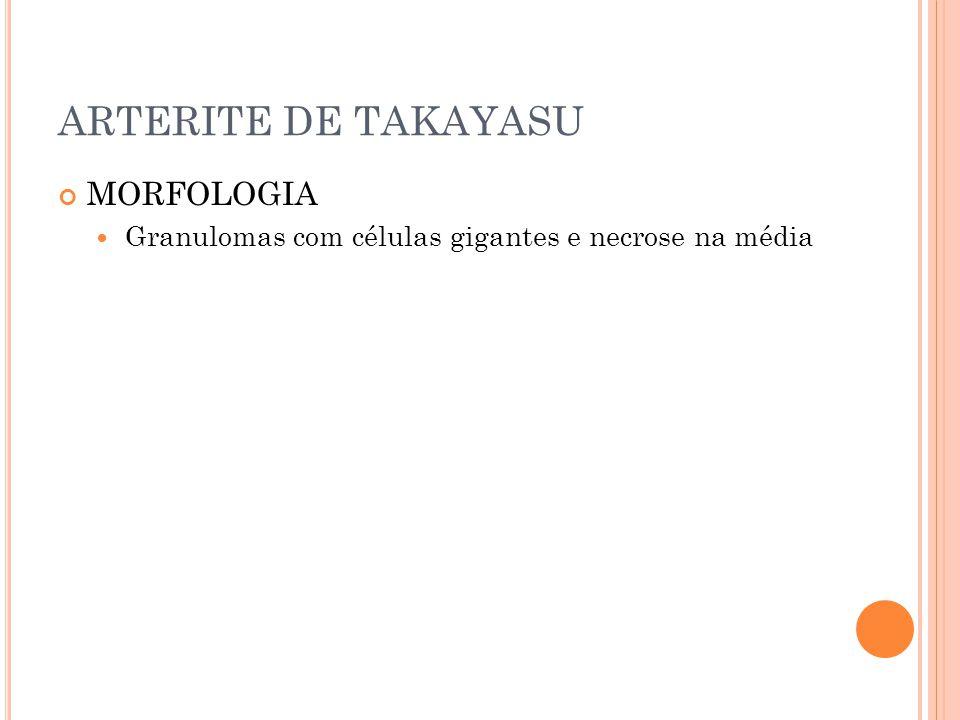 ARTERITE DE TAKAYASU MORFOLOGIA  Granulomas com células gigantes e necrose na média