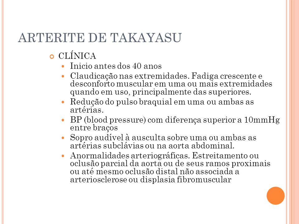 ARTERITE DE TAKAYASU CLÍNICA  Inicio antes dos 40 anos  Claudicação nas extremidades. Fadiga crescente e desconforto muscular em uma ou mais extremi