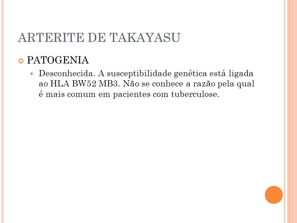 ARTERITE DE TAKAYASU PATOGENIA  Desconhecida. A susceptibilidade genética está ligada ao HLA BW52 MB3. Não se conhece a razão pela qual é mais comum