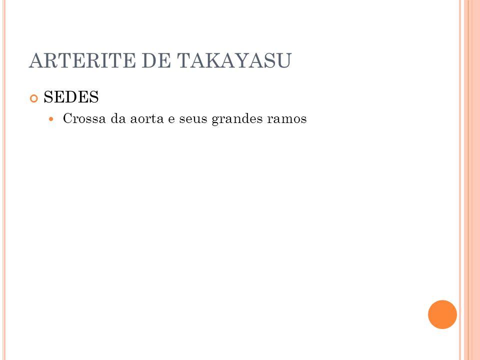 ARTERITE DE TAKAYASU SEDES  Crossa da aorta e seus grandes ramos