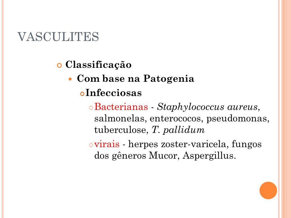 VASCULITES Classificação  Com base na Patogenia Infecciosas Bacterianas - Staphylococcus aureus, salmonelas, enterococos, pseudomonas, tuberculose, T