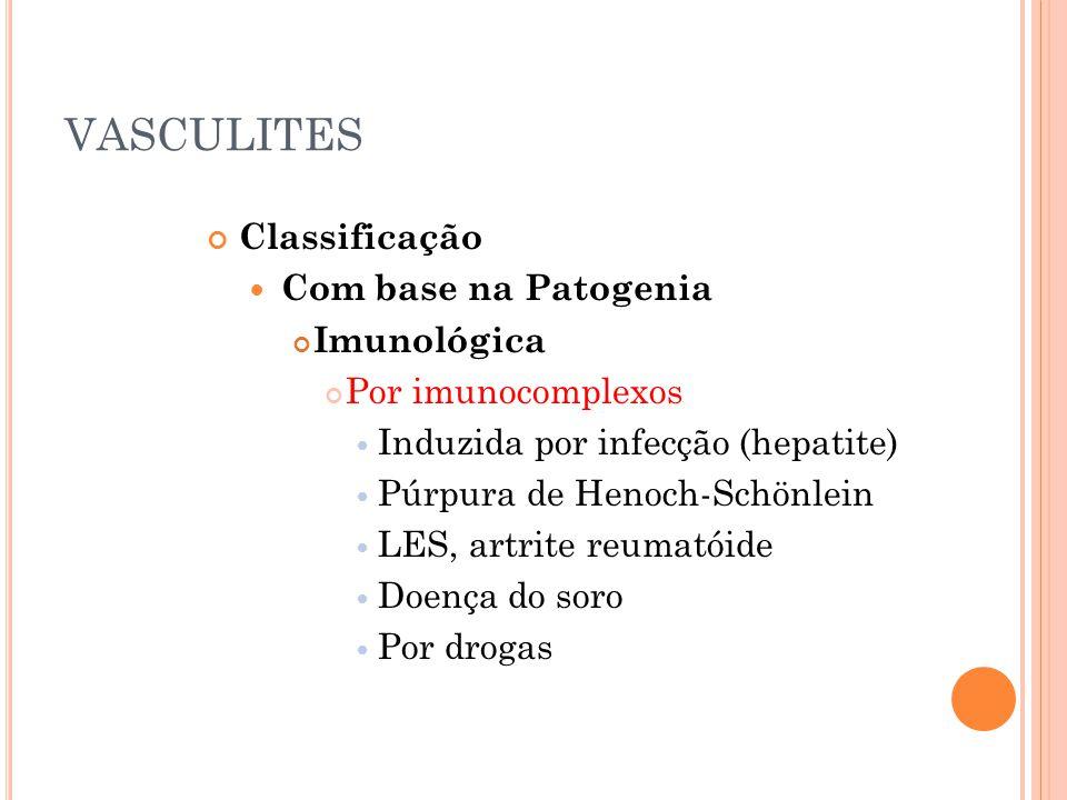 VASCULITES Classificação  Com base na Patogenia Imunológica Por imunocomplexos  Induzida por infecção (hepatite)  Púrpura de Henoch-Schönlein  LES