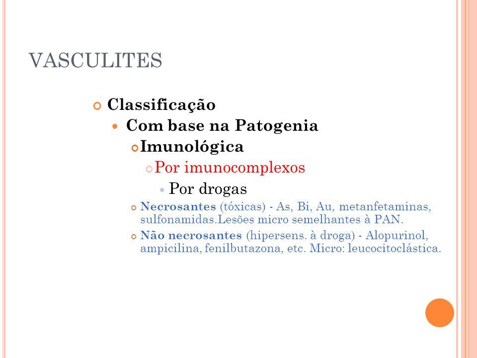 VASCULITES Classificação  Com base na Patogenia Imunológica Por imunocomplexos  Por drogas Necrosantes (tóxicas) - As, Bi, Au, metanfetaminas, sulfo