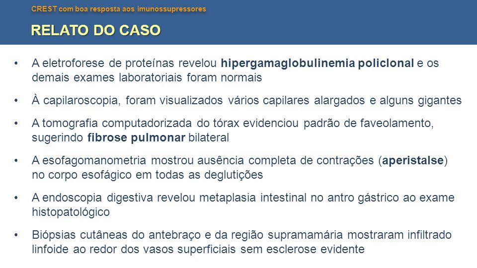 Telangiectasias nas regiões malares e microstomia
