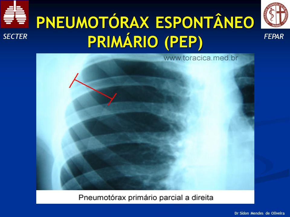 SECTERFEPAR Dr Sidon Mendes de Oliveira PNEUMOTÓRAX ESPONTÂNEO PRIMÁRIO (PEP)