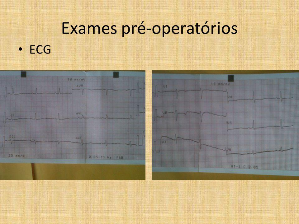 Exames pré-operatórios 13/10/10 Hb (g/dL)11,6 Ht (%)33,7 Leucócitos (mm 3 )9140 Plaquetas (mm 3 )271000 TAP/RNI10,9s/0,92 TTPA/Relação20,0/0,91 Glicemia107 Creat/Uréia1,45/65 Na/K146/4,8 • Laboratoriais