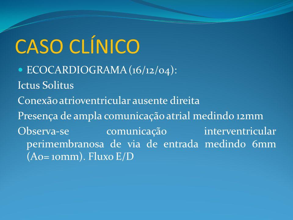 CASO CLÍNICO  ECOCARDIOGRAMA (16/12/04): Ictus Solitus Conexão atrioventricular ausente direita Presença de ampla comunicação atrial medindo 12mm Obs